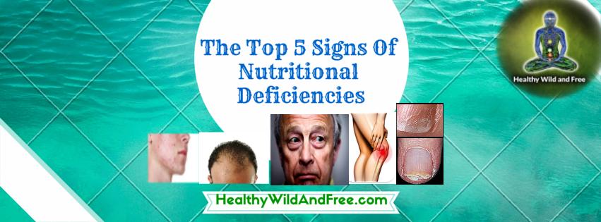 The Top 5 Signs Of Nutritional Deficiencies