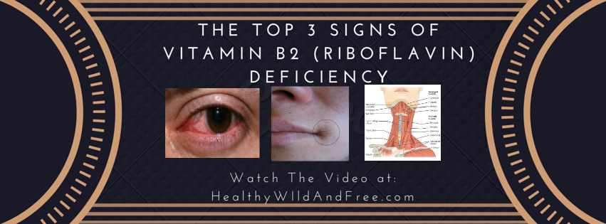 3 Signs Of Vitamin B2 Deficiency (Riboflavin)
