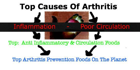 topcausesarthritis