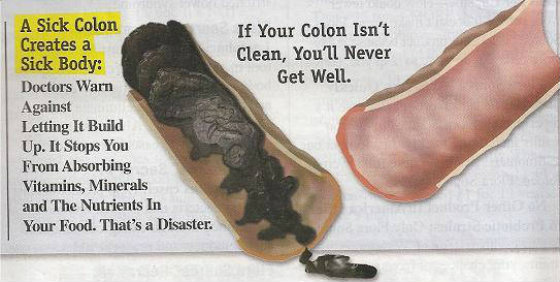 How To Remove 20 Pounds Of Toxic Fat From Your Colon