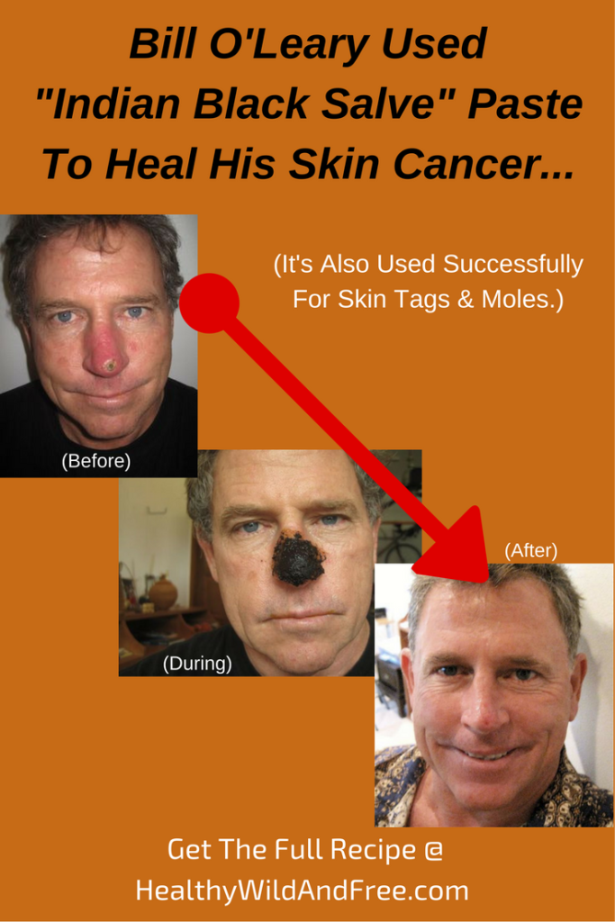 bill-oleary-used-indian-black-salve-paste-to-heal-his-skin-cancer