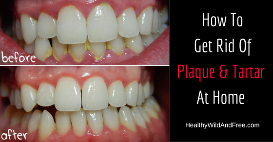 How To Remove Plaque And Tartar At Home Naturally