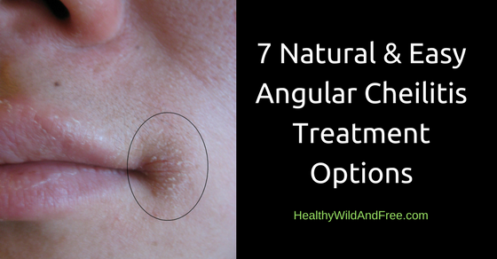 7 Natural and Easy Angular Cheilitis Treatment Options