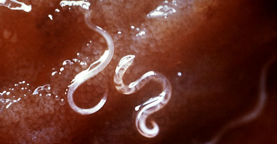 3 Signs You May Have Intestinal Parasites (and what to do about it)