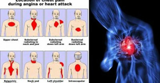 These 4 Signs Happen Before A Deadly Heart Attack Occurs -