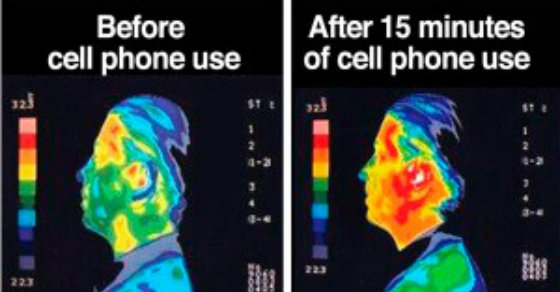 cause and effect of cell phone Many experts say it's unlikely that talking on a cellphone is linked to  a  government study of the effects of rf radiation on male rats found.