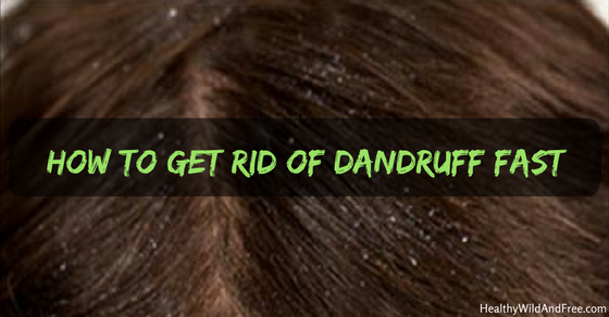 How To Get Rid Of Dandruff Fast (And Naturally)